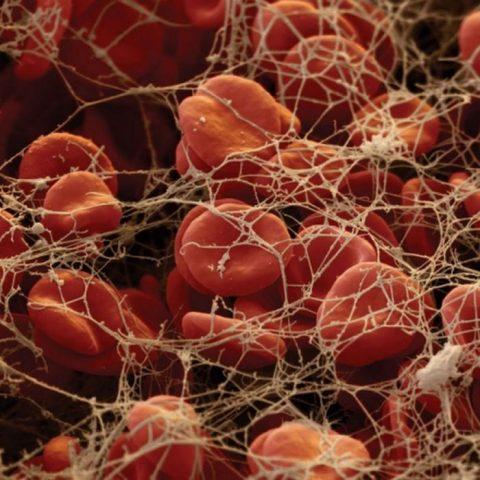 İnsan Vücudu ve Mikroskop'ta Görünüşü (10 Fotograf)