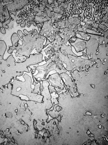 Elektronik Mikroskopta İnsan Gözyaşı İncelemeleri (7 Fotograf)