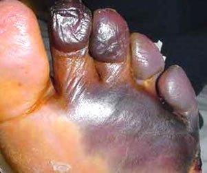 Buerger Hastalığı